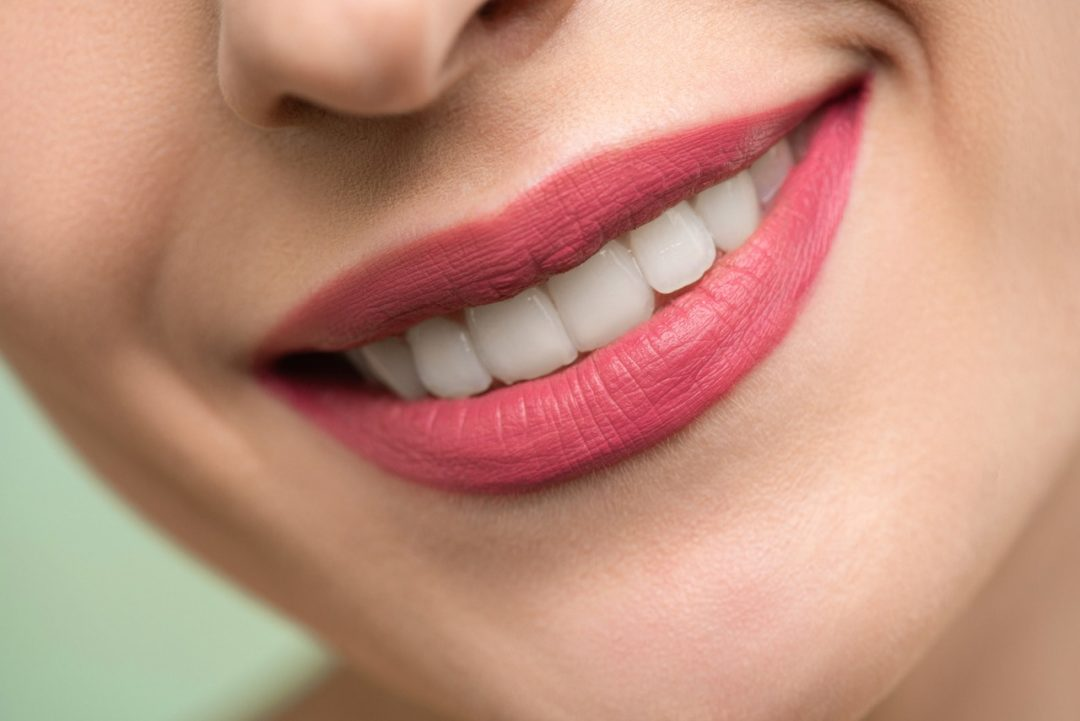 Tips para lograr unos dientes más blancos